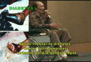 luka diabetes 1